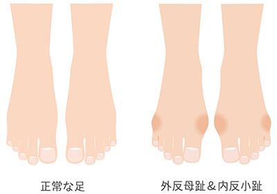 札幌の外反母趾・内反小趾治療|札幌西区琴似 てて整骨院